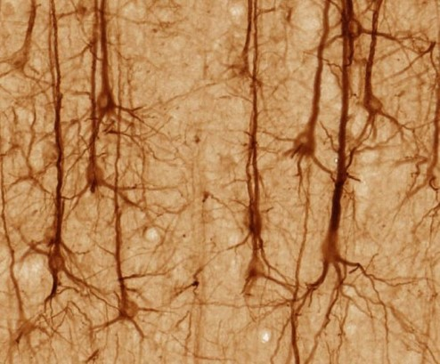 Photograph of neurons.